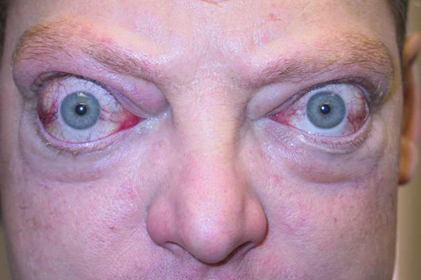 физической деятельности ботокс при эндокринной офтальмопатии обзор