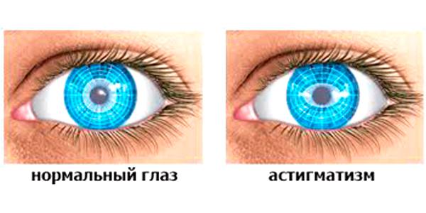 Витамины для глаз капли близорукость