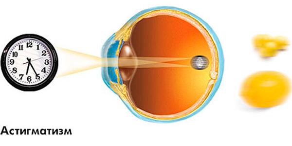 Лазерная коррекция зрения это медицинская услуга