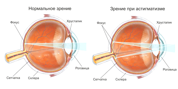 Коррекция зрения у детей практический курс троицкая с