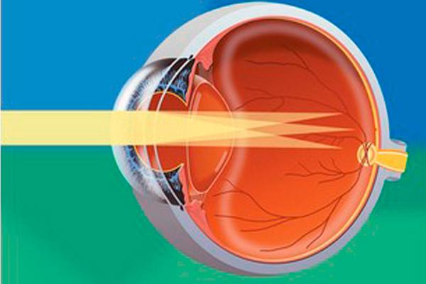 Проверка внутриглазного давления в салонах оптики