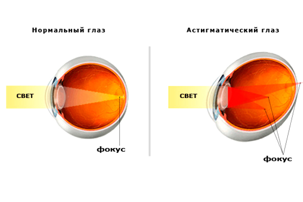 Какие диоптрии бывают у очков при близорукости