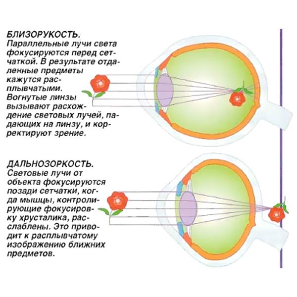 Близорукость (миопия). Причины, Симптомы, Лечение