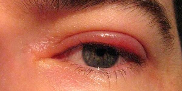 Косметическое средство от кругов под глазами
