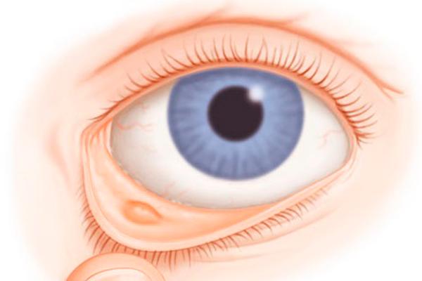 фото склеры глаза