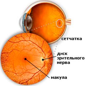 Токсичные поражения зрительного нерва2