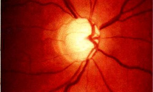 Токсичные поражения зрительного нерва4