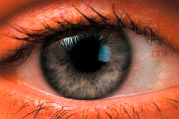 Заболевания стекловидного тела