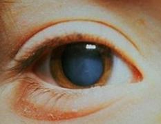 Афакия глаза — отсутствие хрусталика