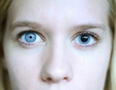 Анизокория — различие в размерах зрачков