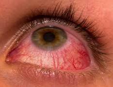 Кератит — воспаление роговицы