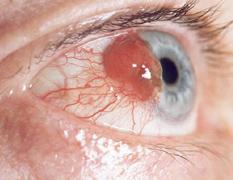 Склерит — воспаление склеры