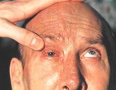 Токсичные поражения зрительного нерва