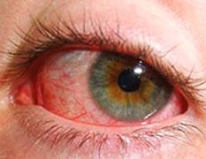 Заболевания глаз у человека