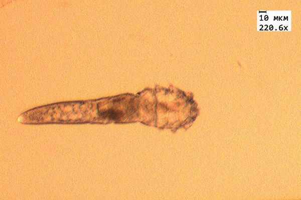 Исследование ресниц на демодекс